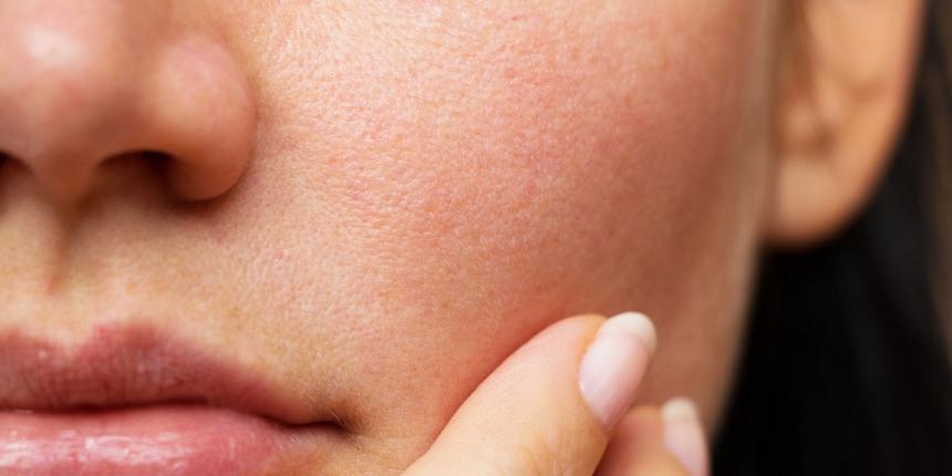 Kā izvairīties no priekšlaicīgas novecošanās sausas ādas īpašniecēm